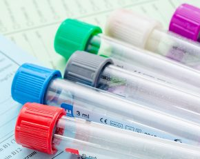 service-hormone-tests-800x640